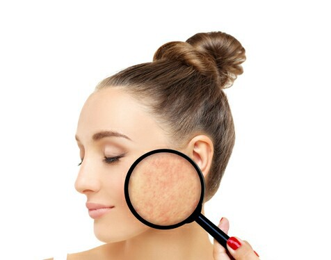 What type of skin do we have?